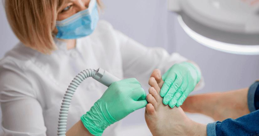 Diabeetikon jalkojenhoito - Usein kysyttyjä kysymyksiä