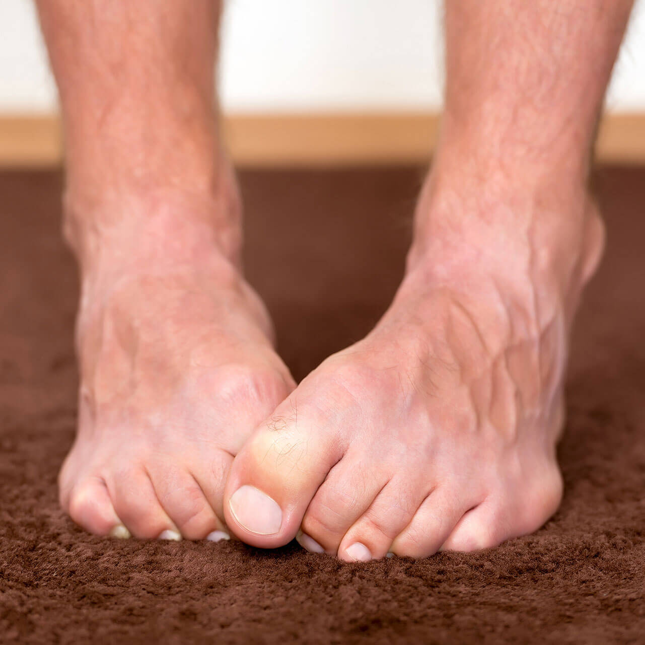 Hautumat ja jalkasieni